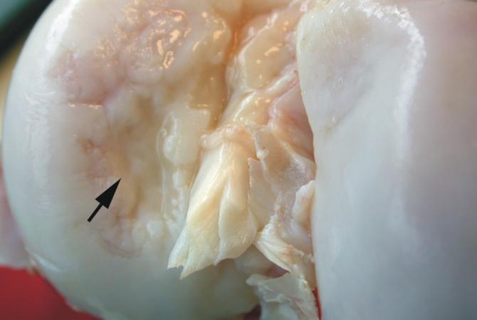 cu articulații de osteochondroză fisură